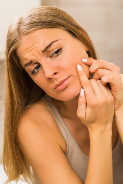 woman treating her acne