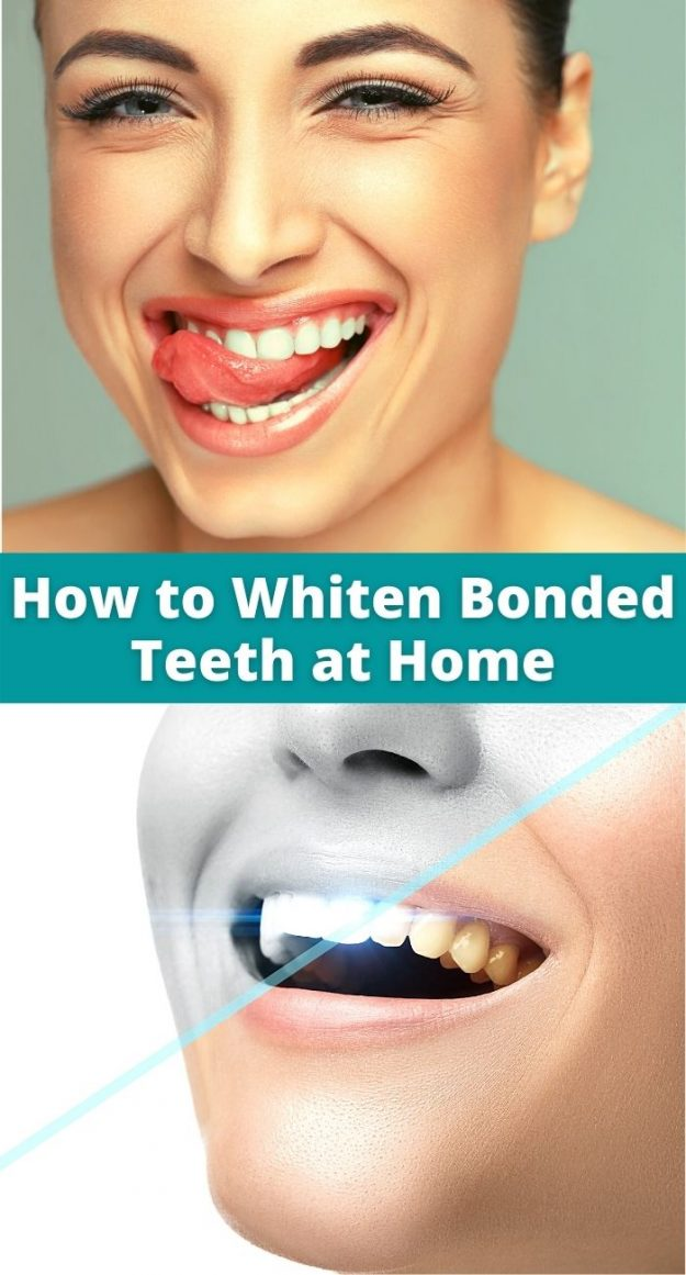 How to Whiten Bonded Teeth at Home 101