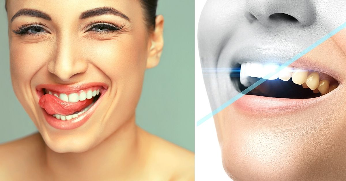 How to Whiten Bonded Teeth at Home