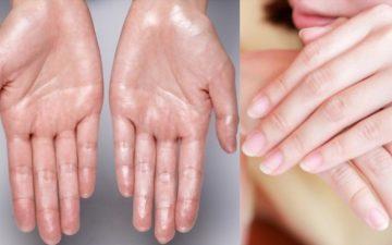 soft and bendy fingernails