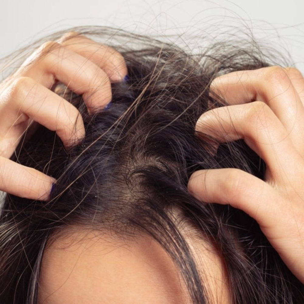 will dying hair kill lice